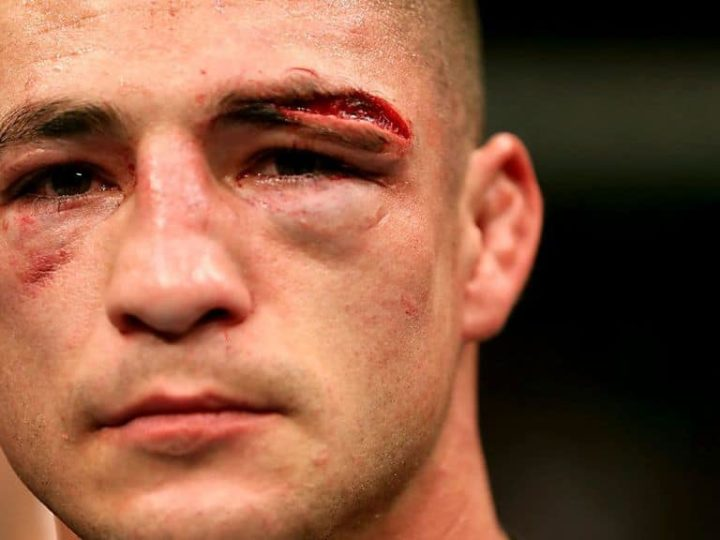 Diego Sanchez's Crazy Chin Workouts To Stop Him Getting Knocked Out